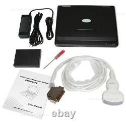 Ultrasound scanner notebook full digital B-Ultrasound diagnostic system Convex