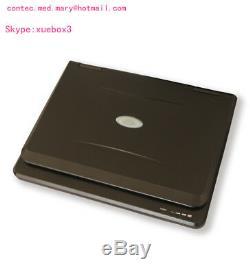 Veterinary Ultrasound Scanner Laptop Machine 7.5Mhz Rectal, bovine & equine, hot