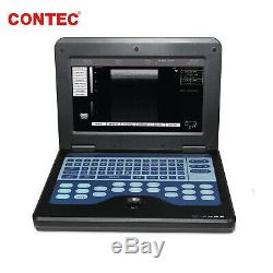 Veterinary Ultrasound Scanner Portable Laptop Machine, 7.5 Rectal, horse/CowithSheep